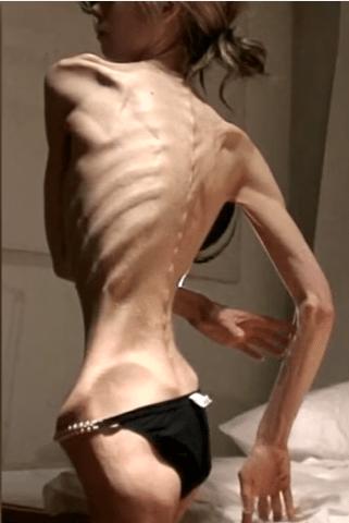 Anoreksiya Nervoza Hastalığı - Dünyanın En Zayıf İnsanının Hayatı 39 Yaşında 25 Kilo